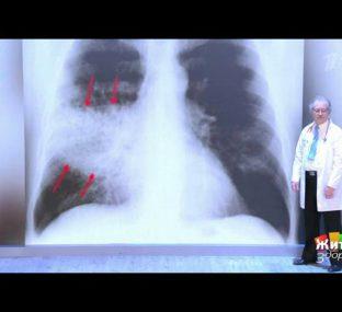 Тяжелые проблемы легких: бактериальная пневмония. Жить здорово!  27.10.2020